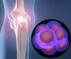 Scientists at the University of Bristol report some success with stem cell therapy for the treatment of osteoarthritis damage in knees.     Similarly, according to scientists at the Cardiff University, stem cells can be turned into cartilage cells and this cartilage can be transplanted in an affected joint.