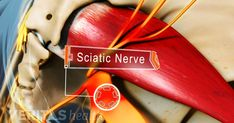 Sciatica is the term used to describe nerve pain in the buttocks, legs and feet. It is caused when the sciatic nerve – the longest nerv. Pinched Sciatic Nerve, Sciatic Nerve Relief, Severe Sciatica, Sciatica Symptoms, Sciatica Exercises, Sciatic Pain, Siatic Nerve, Nerve Pain, Health