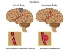 Blood Clot in Brain Symptoms, Treatment and Natural Remedies