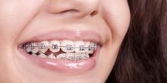 Eingerissene Mundwinkel – woran liegt's?
