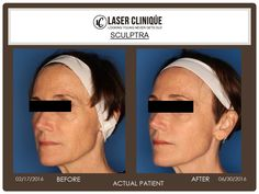 Beautiful and natural anti-aging results using Sculptra aesthetic!