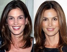 "Cindy Crawford has confessed to regular trips to the doctor for Botox, Dermal fillers and vitamin injections, since the ripe age of 29.  Cindy Crawford: ""I'm not going to lie to myself, past a certain age, creams work on the texture of your skin but, in order to restore elasticity, all I can really count on is vitamin injections, Botox and Dermal Fillers""."