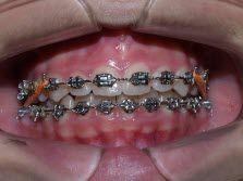 TotDental tu ortodoncia de confianza