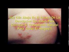 tratamiento del herpes zoster rapido y natural - http://solucionparaelacne.org/blog/tratamiento-del-herpes-zoster-rapido-y-natural/