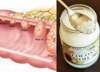 Coconut Oil Kills Colon Cancer Cells Study Shows