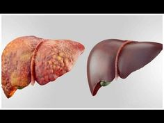 4 FOODS THAT CAN DETOX YOUR LIVER FAST AND KEEP IT HEALTHY ! | Health Vlogger - YouTube