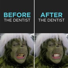 Dentaltown - The Grinch, Before & After he went to the dentist and received a smile makeover for Christmas!