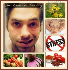 Natural and Alternative Home Remedies for Bell's Palsy