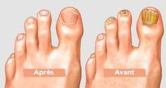 Même les médecins sont étonnés : trempez vos pieds dans ce mélange pour retirer naturellement les champignons de vos orteils ! | Santé+ Magazine - Le magazine de la santé naturelle