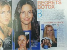 Dr. Bonanni gives his opinion on Botox given to stars.
