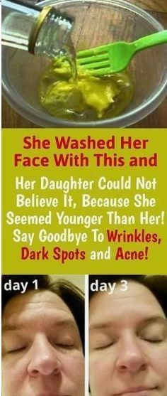 She Washed Her Face With This and Her Daughter Could Not Believe It, Because She Seemed Younger Than Her! Say Goodbye To Wrinkles, Dark Spots and Acne! Healthy Women, Healthy Tips, Healthy Skin, Healthy Drinks, Healthy Recipes, Healthy Juices, Healthy Beauty, Healthy Herbs, Healthy Detox