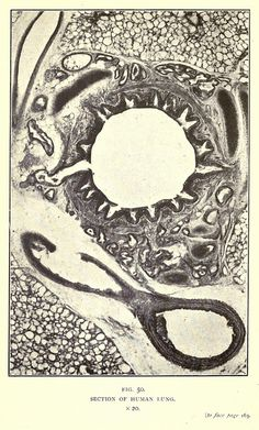 Fig. 50. Section of human lung. x20. A selection of photo-micrographs created by Arthur E Smith and featured in the book Nature through Microscope & Camera (1909) by Richard Kerr.