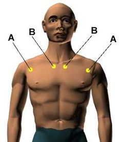#acupressure for #asthma