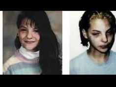 Crystal Meth Before & After and its Devastating Effects. American dreams are shattered by the use of meth. Effects Of Drug Abuse, Faces Of Meth, Meth Use, Social Work Interventions, Dental Images, Dental Fillings, Celebrities Before And After, Dental Procedures