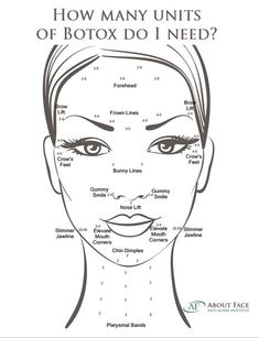 How many units of Botox do I need? How many units of Botox do I need for forehead or eyebrows?Botox is measured in units, and Allergan. Facial Fillers, Botox Fillers, Dermal Fillers, Lip Fillers, Botox Forehead, Botox Face, Botox Injection Sites, Botox Injections, Relleno Facial