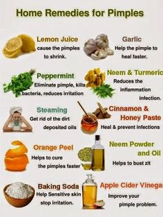 Home Remedies: Home Remedies for Acne & Pesky Pimples