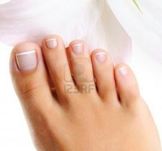 Tuesday Trivia The Most Common Cause Of Ingrown Toenails As A Natural Design Have Basic Shape At Birth