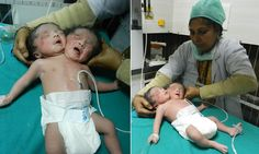 Urmila Sharma, gave birth to conjoined twins at Cygnus JK Hindu Hospital in Sonipat, Haryana, in northern India, yesterday morning. Vintage Oddities, Conjoined Twins, Soprano, Human Oddities, Two Heads, Toddler Humor, Baby Faces, Camping Gifts, Baby Girl Names