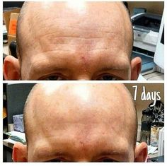 Nerium results.