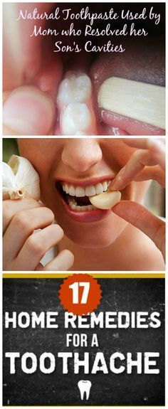 17 Homemade Remedies For Toothache..These Herbs are very effective for fast Pain relief & Safe.. plus a natural toothpaste for healing your cavity too.. #toothache remedies