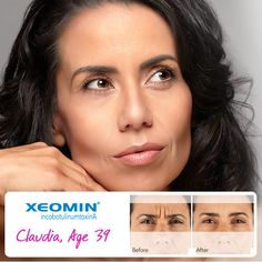 Xeomin -- reduce your wrinkles, instantly at Dr. Bourget's in Dana Point CA!