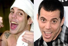 "Steve-O: He was just going to bust them all out anyway... right? ""Ill Grills: Celebrity teeth makeovers"" from NY Daily News http://nydn.us/H2kHlL"