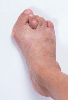 How can you shorten the time it takes to recover from bunion surgery?