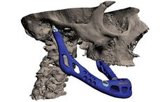 Custom Jaw Transplant Created With 3-D Printer - A custom working jawbone was created for an 83-year-old patient using titanium powder and bioceramic coating. The first of its kind, the successful surgery opens the door for individualized bone replacement and, perhaps one day, the ability to print out new muscles and organs.