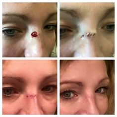 "Jami's story. ""My journey began three weeks ago when I had a very small white spot on my nose appear two months after using Rodan and Fields Reverse Regimen. (Blessing!!!)""  ""I freaked out because of the scar that this basal cell carcinoma was going to leave on my nose. Forty-eight hours after I had the MOHS procedure done, I started using the Soothe Regimen to cleanse and moisturize my face; including my sutures/incision. I had the sutures removed five days ago and have cont"