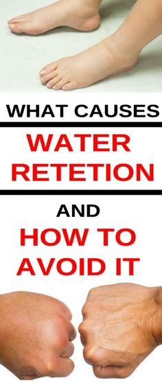 If you're suffering from water retention you should realize your doctor, to rule out anything sinister. Low-Calorie Diets If you have water retention you are quite inclined to be overweight. Water retention is simply . Water Retention Causes, Water Retention Remedies, Physical Inactivity, Body Tissues, Good Health Tips, Water Weight, Healthy Beauty, Natural Home Remedies, Medical Conditions