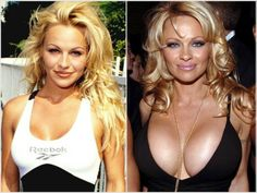 Did She or Didn't She? Telltale Signs of Bad Plastic Surgery Read More http://www.ivillage.com/did-she-or-didn-t-she-telltale-signs-bad-plastic-surgery-0/4-b-436544#ixzz1qLAPZ290 Sign up for iVillage Special Offers Breast Augmentation