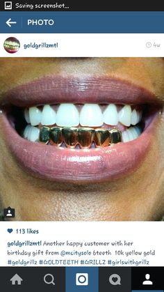 6 yellow gold teeth. Girls with grillz.