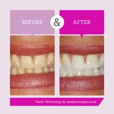 Teeth Whitening before and after  www.smileconcepts.co.uk