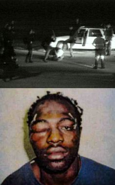 Rodney King, 1992. Victim of police brutality.