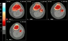 CT scan showing the condition http://www.osgood-schlatters-disease.co.uk/diagnosis-osgood-schlatter/