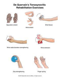 de Quervain's rehab exercise