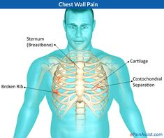 Information Of Chest Pain Costochondritis Symptoms - Costochondritis Treatment Rib Pain, Costochondritis, Rheumatic Diseases, Ankylosing Spondylitis, Disease Symptoms, Psoriatic Arthritis, Medical Problems, Cardiovascular Disease, Health And Wellbeing
