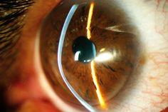 QUERATOCONO - ¿Conoces esta patología de la córnea? Si cambias de gafas con frecuencia debido a una graduación inestable quizá la padezcas y sea conveniente acudir a consulta oftalmológica. Esta patología aparece generalmente en la adolescencia y evoluciona hasta los 40 años aprox. Te contamos todo lo relacionado con el #queratocono en nuestro blog.
