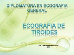 Ecografia de tiroides by Sussy Leon Rodriguez via slideshare