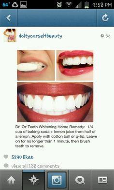 Teeth Whitening!!