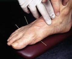 the easiest bachelor degree to get acupuncture essay