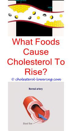 #cholesterolratio will eating eggs raise my cholesterol? - what is the bad cholesterol results?.#lowercholesterolnaturally how can i lower my cholesterol with diet? what is your hdl cholesterol level in mg dl? how much cholesterol in oysters? 8620072444