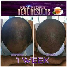 Www.growwitheraina.com Men are seeing amazing results with our all natural hair growth products! There is a solution for balding #thinning hair!