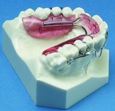 Inman Aligner Appliances from Great Lakes - Great Lakes Orthodontics - Great Lakes Orthodontics Laboratory