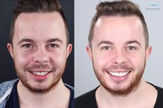 One beautiful smile can change anything. William from Dublin loves his perfect new smile. #dentalclinic #perfectsmile #digitalsmiledesign #best #customerservice #smile #expert #orthodontictreatment #teethmakeover #cosmeticdentistry by seapoint_clinic Our Cosmetic Dentistry Page: http://www.myimagedental.com/services/cosmetic-dentistry/ Google My Business: https://plus.google.com/ImageDentalStockton/about Our Yelp Page: http://www.yelp.com/biz/image-dental-stockton-3 Our Facebook Page…
