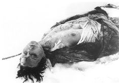 Zoya Kosmodemyanskaya's body after she was cut off the gallows several weeks after her execution on Nov 29,1941.