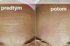 Zázračné bylinky proti vráskam – fantastický výsledok za 7 dní! | Báječný život Beauty Tips For Face, Diy Beauty, Beauty Skin, Health And Beauty, Beauty Hacks, Homemade Beauty Tips, Body Mask, Skin Tips, Natural Medicine