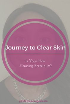 How your  hair might be contributing to more acne breakouts on your face and what to do to prevent this from happening in the future.