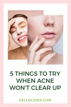 Acne can be overwhelming. We are sharing 5 easy tips to achieve clear skin on the blog. Learn how to get rid of acne and get clear skin without the need for more harsh skin products that dry out your skin and cause even more acne. natural acne treatment | acne treatment products | how to clear acne Acv For Acne, Acv For Skin, Vinegar For Acne, Apple Cider Vinegar For Skin, Rosacea Remedies, Natural Acne Treatment, Clear Skin Tips, Acne Solutions, Toner For Face