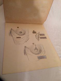 Original Pen Ink Medical Diagram Female Body by oldfangledcool